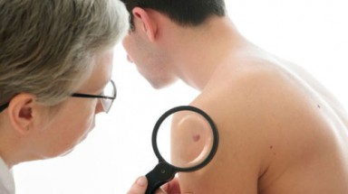 Skin cancer: Genetic mutations 'warn of risk'