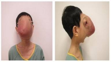 Surgery for the boy without a human face